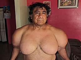 真人版大力水手!秘鲁男子胸肌猛涨太惊人!