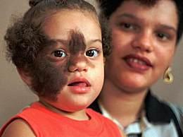 16名孩子变成狼人怎么回事?只因药物污染浑身长毛