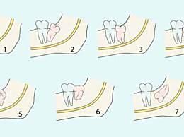 智齿牙龈肿痛怎么办?治疗牙龈肿痛小妙招