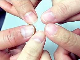 指甲上没有月牙代表身体不好吗?指甲上的月牙颜色反映什么