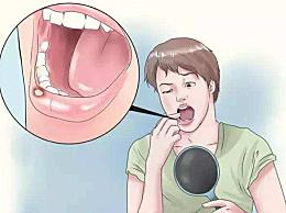 口腔溃疡是什么原因引起的?口腔溃疡的原因和治疗方法