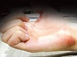 腱鞘炎的最佳治疗方法 腱鞘炎日常生活如何预防护理