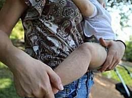 儿童吃错药长毛 受害家庭集体起诉制药公司