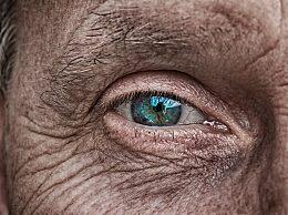 眼窝凹陷是什么回事?眼窝凹陷怎么恢复