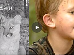 男孩被美洲狮咬头存活 为小男孩的勇敢点赞