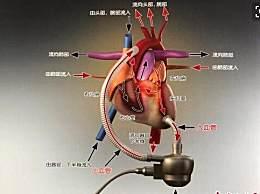 国内首款人工心脏获批上市 人工心脏上市造福人类