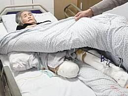 截肢后的肢体去哪里了医院如何处理?答案终于来了