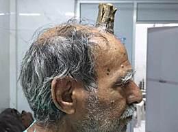 头部受伤后长出牛角 硬角生长原因不明