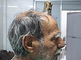印度男子头部长出牛角 人头上为什么长牛角匪夷所思