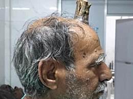 男子头部长出牛角 犄角长达10厘米令人惊叹