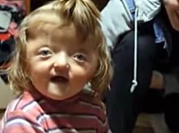 俄一女童长像外星人 托儿所拒绝其入园