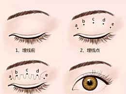 拉双眼皮用哪种方法好 3种常见割双眼皮方法的优缺点汇总