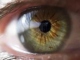 全球超22亿人视力受损 日常科学护眼做好眼部保健很关键