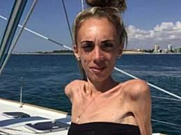 奇闻!23岁姑娘25公斤 女子患厌食症瘦成皮包骨