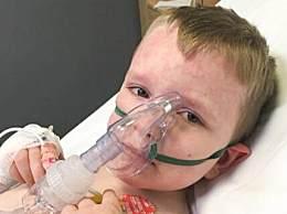 奇闻!7岁男孩对寒冷过敏 每个冬天都要住院