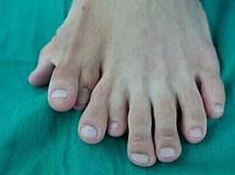 一足生9趾算命说是神仙'赏赐' 手足畸形的原因有哪些?