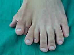 男子一足生9趾 男子一足生9趾什么原因导致的