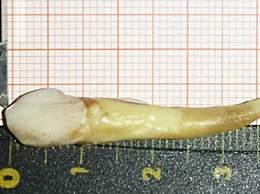 历史上人类最长牙齿 长3.72厘米打破世界纪录