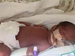 早产病危双胞胎转院北京 命悬一线牵动数万人的心