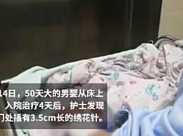 50天男婴被插绣花针 男婴遭残忍虐待受伤原因成谜