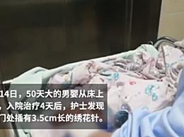 男婴被插绣花针 50天男婴被插绣花针是谁干的