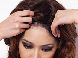 假发套可以天天佩戴吗 长期戴假发套的六大危害和坏处
