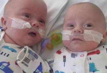 英最小双胞胎生还 治疗129天小家伙成功救活