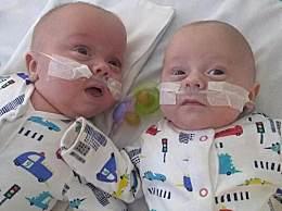 英最小双胞胎生还 体重比一罐汽水还轻