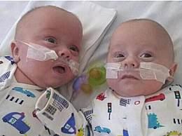 英最小双胞胎生还 出生体重还不到一斤