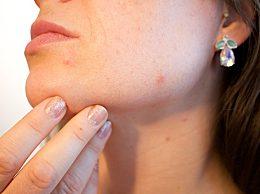冬天预防皮肤过敏的方法