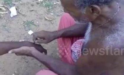 被蛇咬找法师治疗 印度奇葩法师用刀放毒?