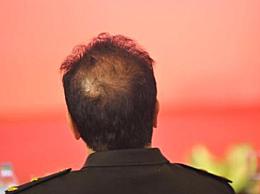 秃顶分为哪几种 是怎么形成的 秃顶的7个种类及形成原因介绍