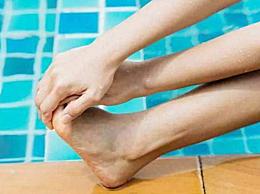 腿抽筋了怎么办 小腿抽筋最快的解决妙招介绍