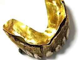 200年前黄金假牙什么样?疑由河马或者海象牙齿所制加上黄金牙托