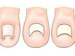 指甲为什么会长到肉里 避免指甲长进肉里的小妙招