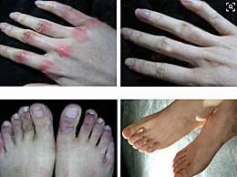 冬季手脚生冻疮怎么办?如何预防手脚生冻疮