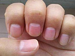 手指上的月牙代表什么 手指甲没有月牙就这3种原因!