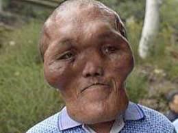 世界上最大的头 男子脑袋巨大无比好像外星人