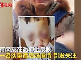 山东虐待幼童继母被刑拘 后妈虐待手段令人发指