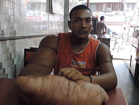世界上最大的手 男子手长近半米重达40多斤