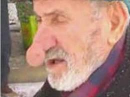 世界上最大的鼻子 土耳其老人鼻子长14厘米