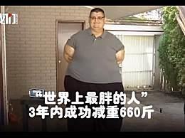 世界上最胖的人减660斤 手术及节食锻炼后体重至520斤