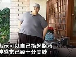 最胖的人减660斤 能活动能自理的感觉真好