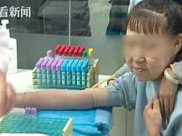 15岁少女长60岁脸 花季少女患罕见皮肤病