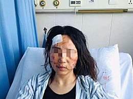 女子遭丈夫和公公暴打粪便涂脸 因怀疑女方出轨