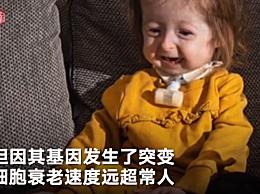 英国2岁女童患罕见遗传病 看起来像80岁