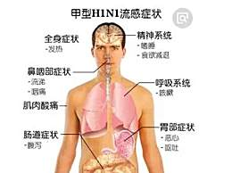 甲流和普通感冒有什么区别?日常生活如何预防甲流