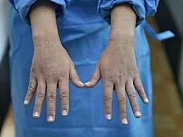 22岁感染科护士的手 无数网友看完以后泪奔