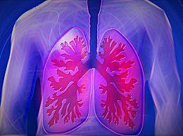 新冠肺炎与流感区别 新冠肺炎与季节性流感有4大不同
