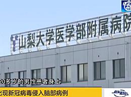 日本发现特殊病例 检测为阴性但病毒开始侵入脑部